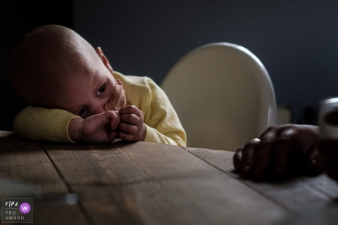 A little boy with a bandage on his face cries while leaning against a table in this FPJA award-winning picture by a Noord Barbant, Netherlands family photographer.