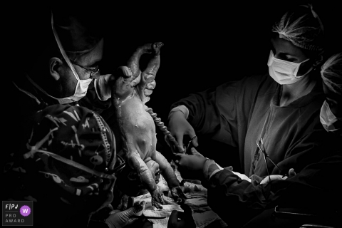 Espirito Santo, Brazil - CESARIAN SURGERY PHOTOGRAPHY SESSION
