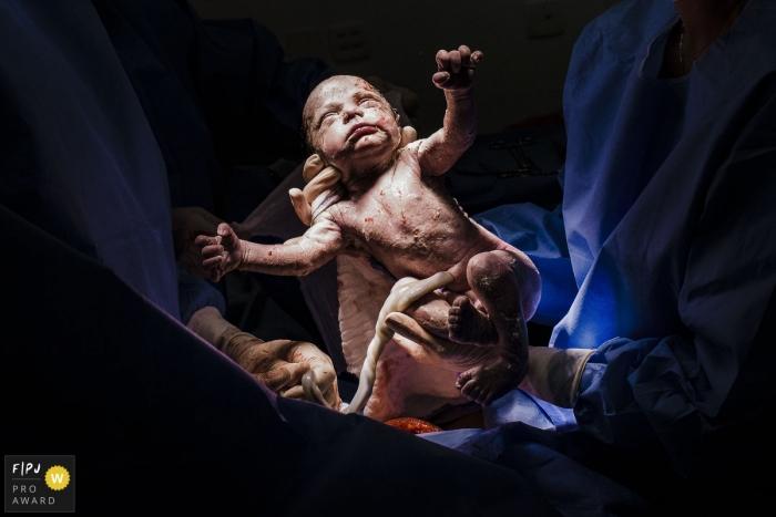 Rio de JaneiroBrazil Maternidade Perinatal Laranjeiras delivery of new baby - The perfect nature