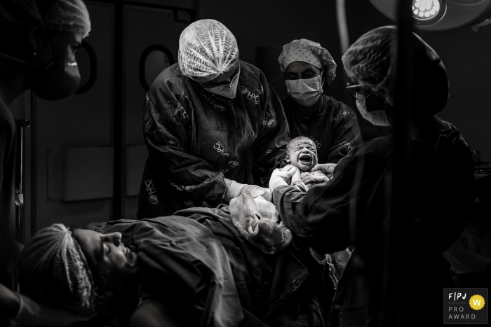 Hospital Plantadores de Cana documentary birth photography showing the baby arrived with a loud cry